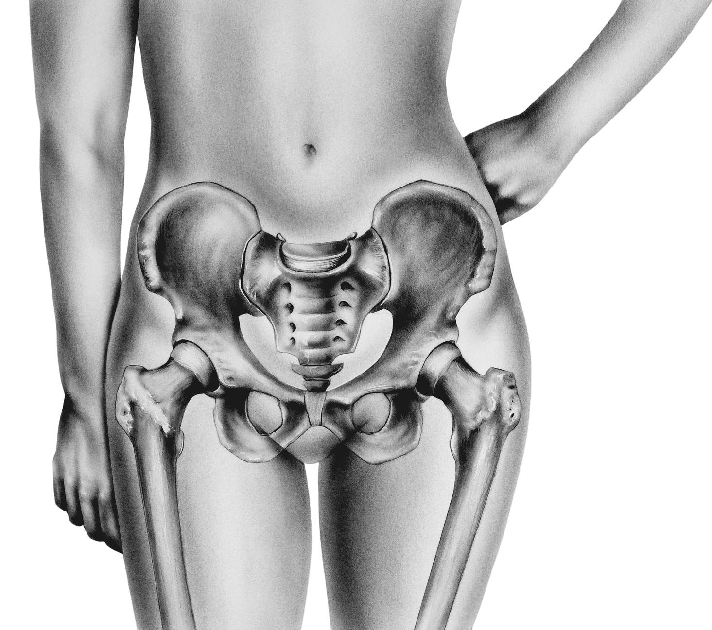 Pelvis  - Female highlighting normal anatomical bones. Shown are the ilium, iliac crest, sacrum, coccyx, superior pubic ramus, inferior pubic ramus, and femurs.